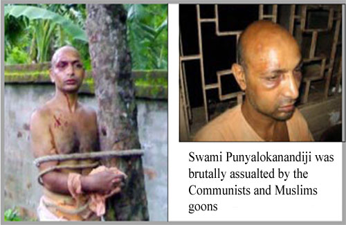 Photos of Swami Punyalokanandaji, brutally assaulted by Muslims & Communists