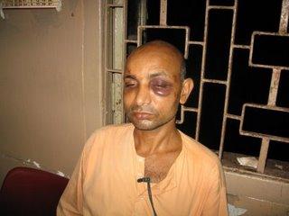 Swami Punyalokananda at the SSKM Hospital, Kolkata