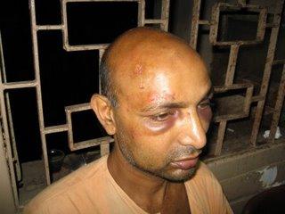 Swami Punyalokananda at the SSKM Hospital, Kolkata - 2