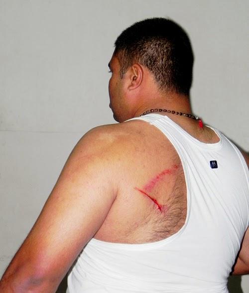 Shri. Sagar Mhatre injured in attack by miscreants in Sanatan ashram